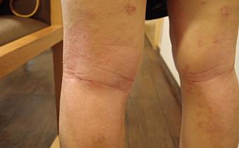 令我连生活都困难的过敏性皮炎,3个月就好了。