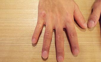 鼻炎痊愈,过敏性皮炎也3个月就痊愈了。