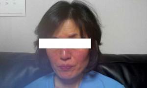 我患有两年的面部白屑风得到了治愈。