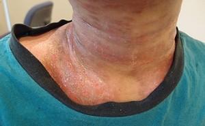 重症过敏性皮炎好多了,个子也长高了。
