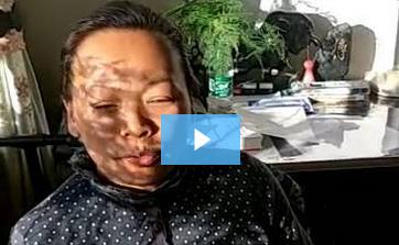 鼻炎真实实例–杨女士