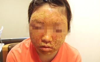 滥用激素,经过很厉害的瞑眩反应后皮肤终于干净了