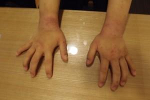 20年的过敏性皮炎好转了很多。