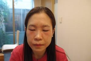 过敏性皮炎症状几乎痊愈。